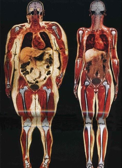 obésité androide maigrir